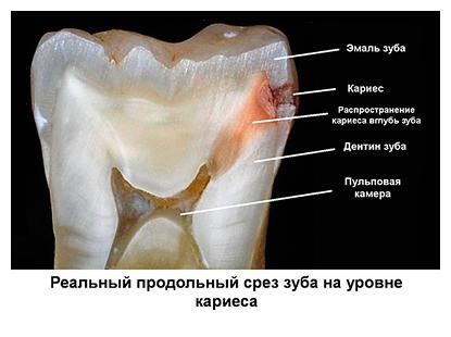 Лечение кариеса в студии Леонида Горбунова