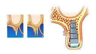 наращивание кости