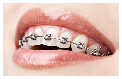 отбеливание и лечение зубов брекетами