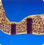 sinus6