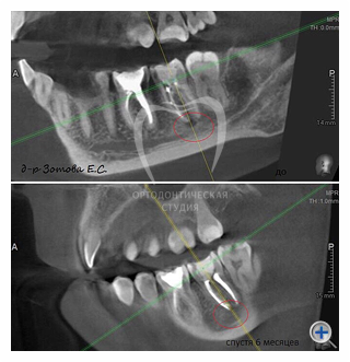 примеры лечения кисты зуба