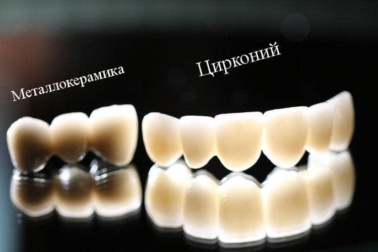 Отличия циркония от металлокерамики