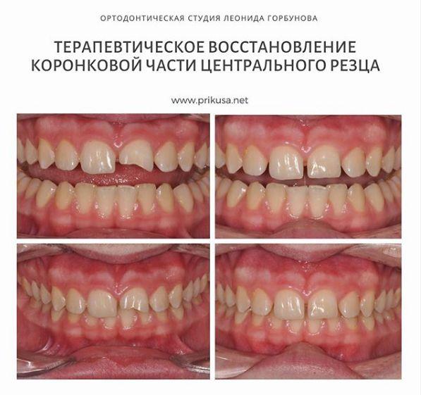 Реставрация скола зубы композитным материалом