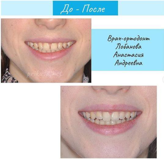 Устраняем щель между зубов
