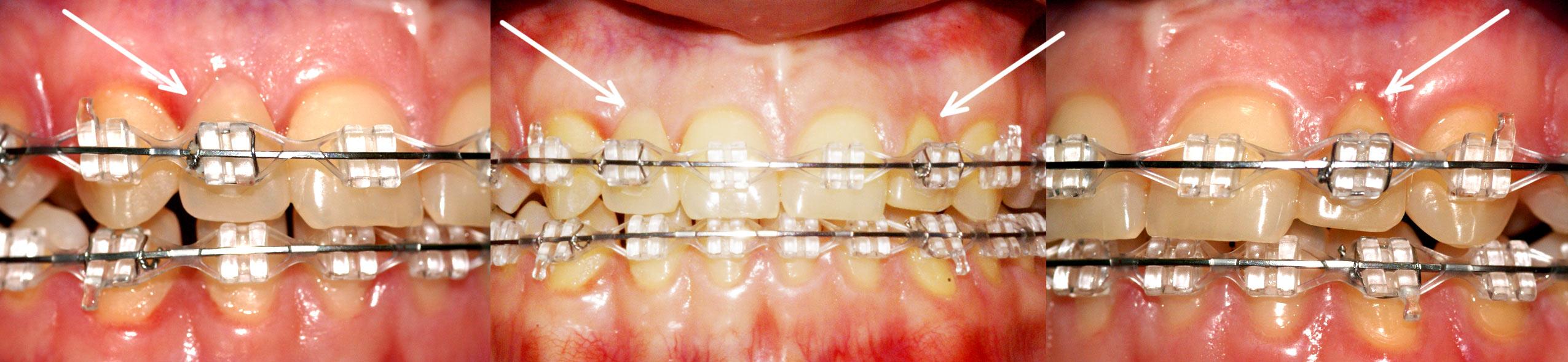 накладные зубы инструкция