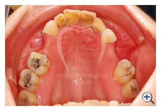 наращивание костной ткани при имплантации зубов