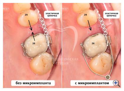 лечение зубов процедуры