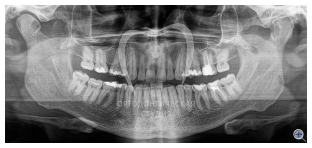 панорамный снимок зубов