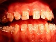 окончание лечения зубов