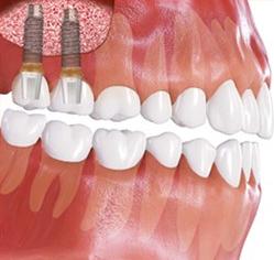 синус лифтинг зубов