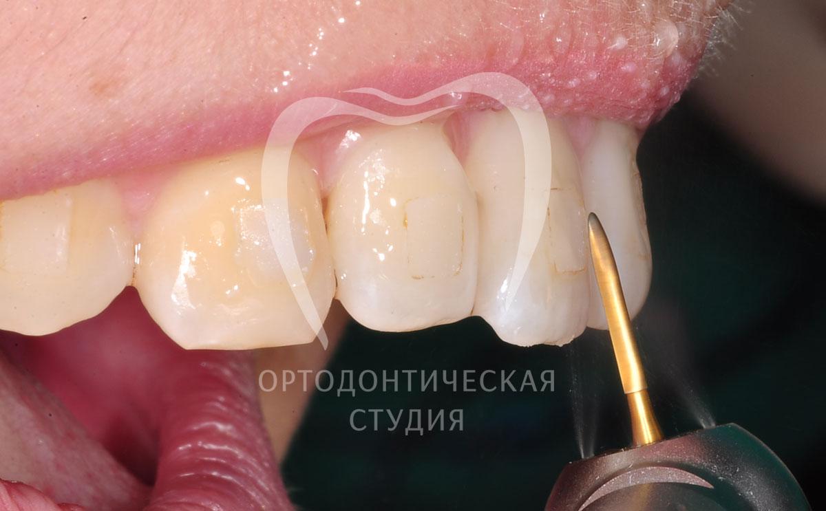 Отбеливание зубов севастополь цена