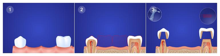 коронки и вкладки на зуб