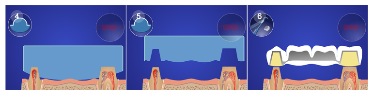 как делается отбеливание зубов у стоматолога