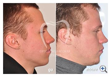 Лечение на брекетах Damon без удаления