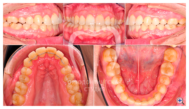 Лечение на брекетах Incognito без удаления зубов